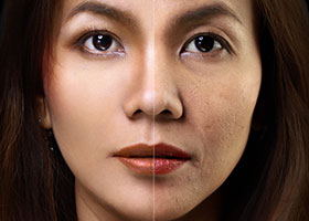 Glutathione Skin Lightening