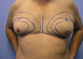 Gynecomastia | Man Boobs Correction